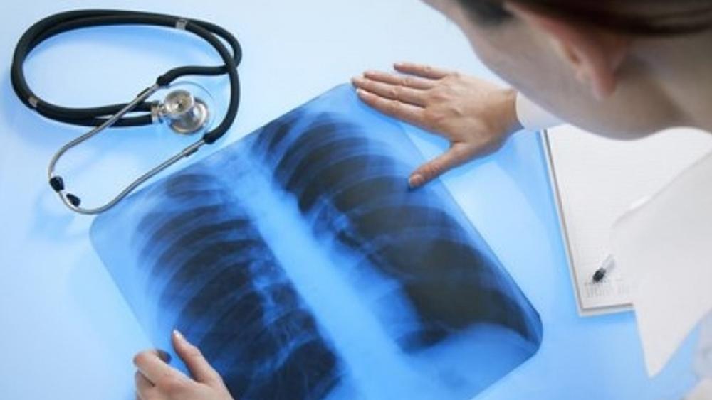 В поликлинике № 68 в Сестрорецке меняют аппарат флюорографии